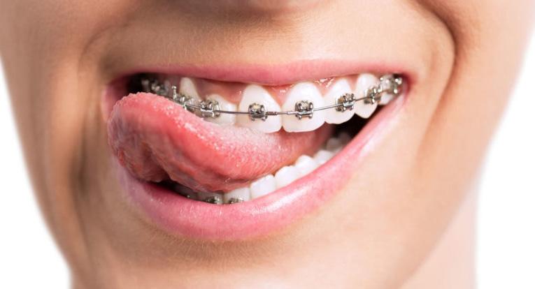 preguntas y cosas que deberías saber sobre ortodoncia