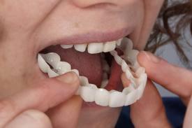 Técnica Snap on smile alternativa a prótesis dentales