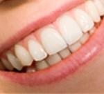 Preguntas y respuestas acerca de blanqueamiento dental