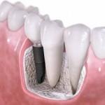 Breve explicación sobre implantes dentales
