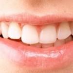 Todo lo que necesita saber sobre los implantes dentales
