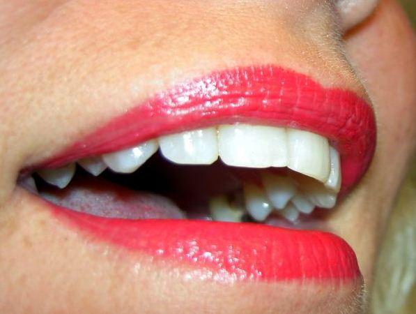 los dientes empastados pueden volver a tener caries en el futuro