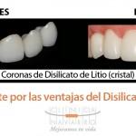 Disilicato de litio: el material perfecto para las coronas dentales