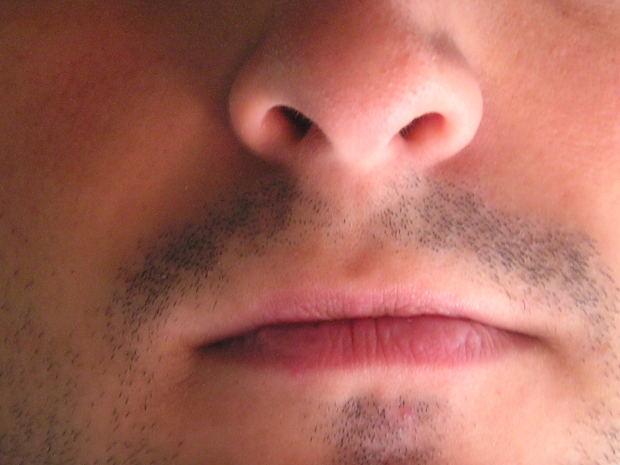 Los hombres con enfermedad periodontal son más propensos a sufrir disfunción erectil