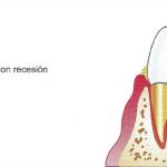 Enfermedad periodontal o piorrea ¿Qué es? ¿Qué la origina? ¿Cómo progresa?