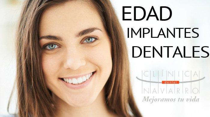 cuanto años hay que tener para ponerse implantes dentales