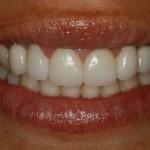 Disilicato de litio: usos dentales y ventajas
