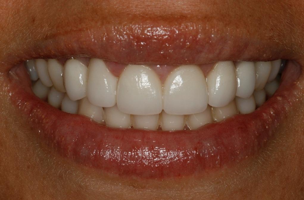 uso del disilicato de litio en coronas dentales y prótesis