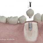 Consejos básicos antes de ponerse un implante dental