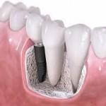implantes_dentales1