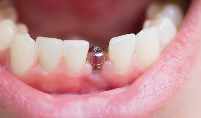 que son implantes dentales post extracción