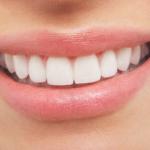 Estética dental y autoestima