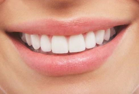 Las ventajas de la estética dental frente a la baja autoestima y falta de confianza