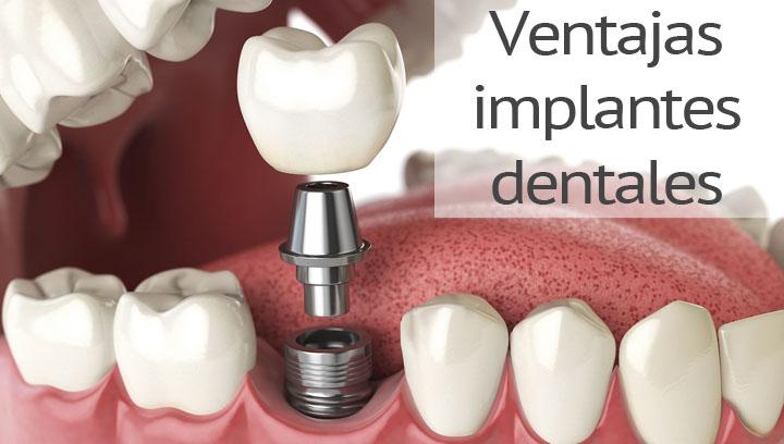 Ventajas y beneficios de usar implantes dentales para salud y estética dental