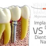 Implantes dentales y su parecido estético a dientes naturales