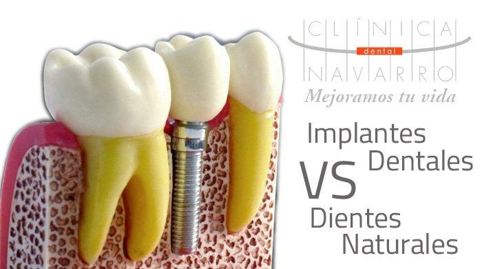 parecidos de los implantes dentales con los dientes naturales
