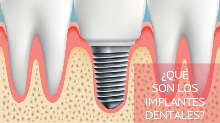 Qué es un implante dental y como se coloca en la boca