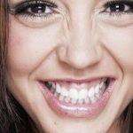 Tengo una sonrisa gingival ¿Qué puedo hacer para mejorar?