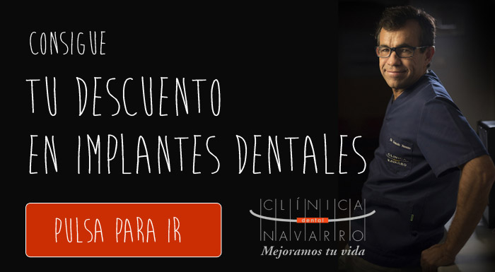 descuento-implantes-dentales-clinica-dental-madrid