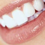 Los objetivos de la estética dental