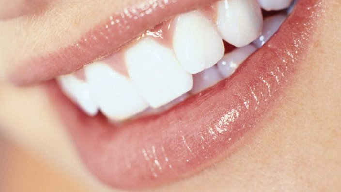 objetivos de la estetica dental, una sonrisa perfecta