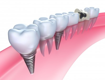 cuales son los tipos de implantes