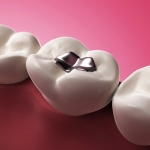 El Consejo General de Dentistas respalda la declaración de principios de la FDI que mantiene que el uso de la amalgama dental es seguro para la salud