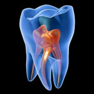 complicaciones endodoncia