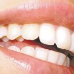 El problema de la obsesión por los dientes blancos o blancorexia