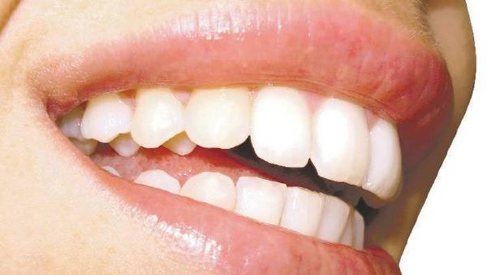 obsesion por blanqueamientos dentales o blancorexia