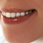 Implantes dentales: ¿Qué se siente con ellos?