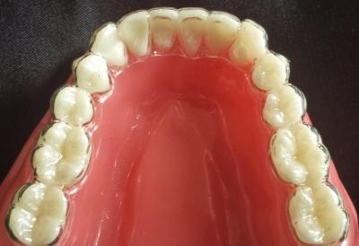 aparatos de ortodoncia invisibles que no se ven