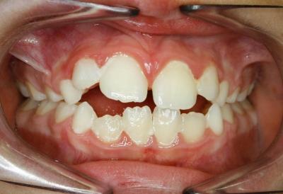 alteraciones esqueleticas en ortodoncia