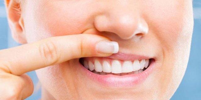 plan para prevenir las enfermedades de encías