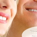 ¿Cuanto duran los implantes dentales?