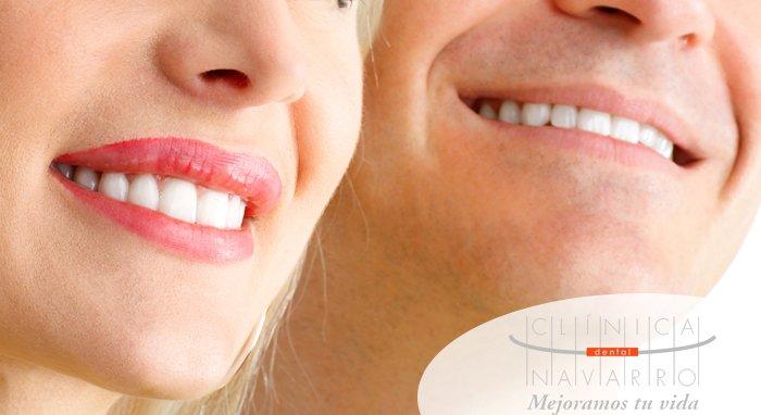 duracion de los implantes dentales