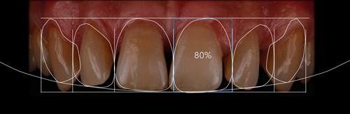 esquema con la posición de los dientes en DSD