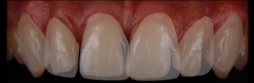 previsualización dientes nuevos sobre dientes iniciales DSD