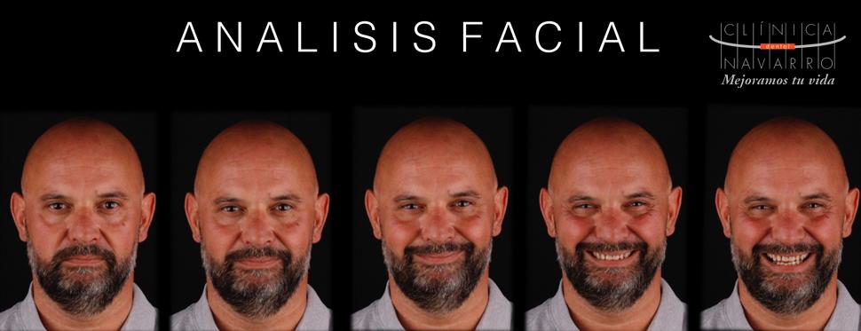 analisis de la cara para diseño de sonrisa digital