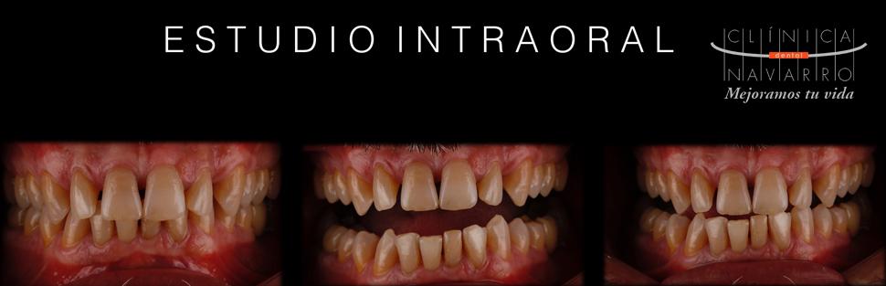 estudio intraoral de la sonrisa para mejorar estética con DSD
