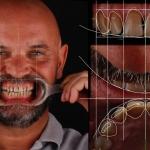 Planificación para cierre de diastemas o espacio entre dientes con DSD