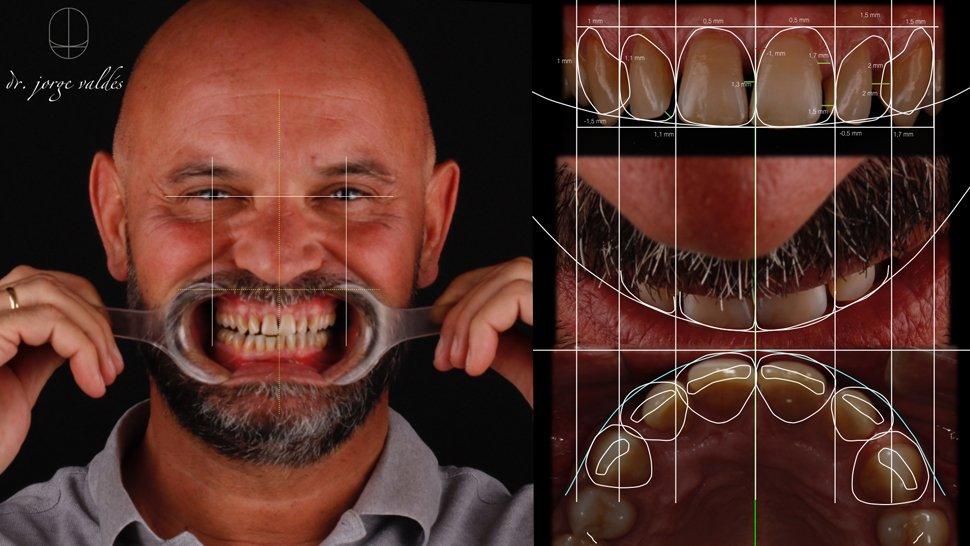 imagen principal del proceso de dsd para espaciado dental
