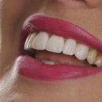 Implantes dentales: proceso, procedimiento, fases, cirugía y dudas