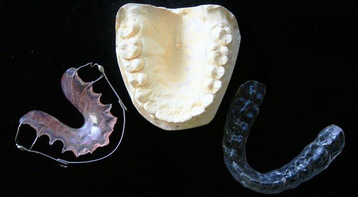 tipos de ortodoncia y sus ventajas