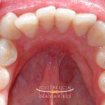 ¿Qué es y como se trata el apiñamiento dental?