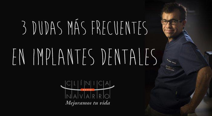 3 preguntas más frecuentes sobre implantes dentales