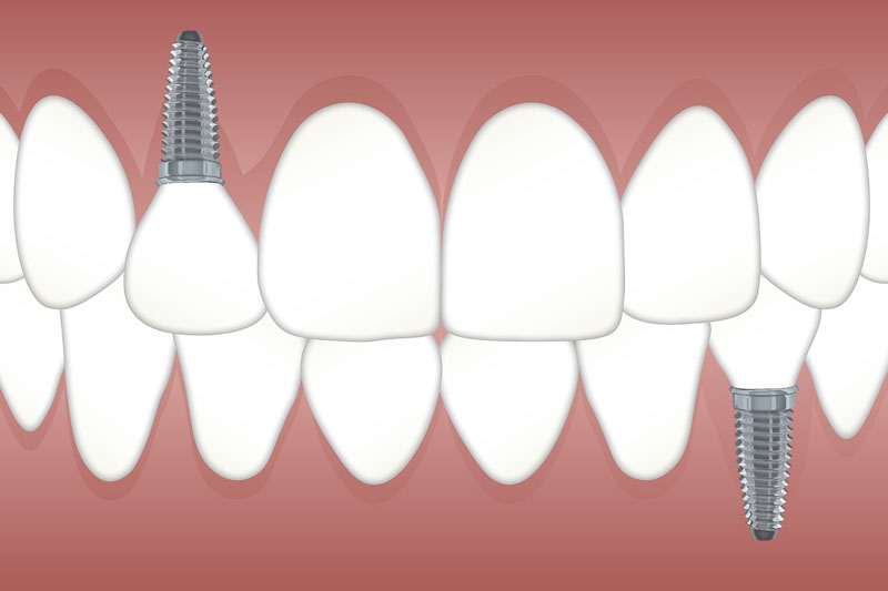 cosas que saber antes de ponerme implantes dentales