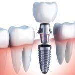 Implantes dentales con carga inmediata, ventajas y desventajas