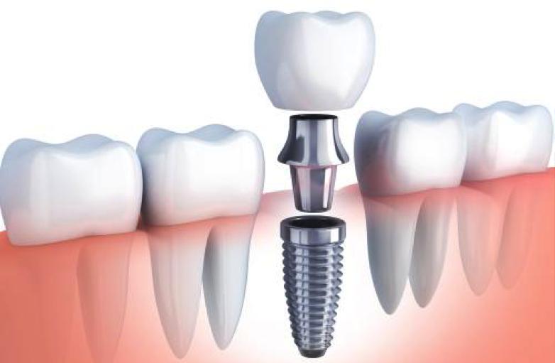 faqs y preguntas frecuentes de los pacientes sobre implantes dentales y su proceso de colocación