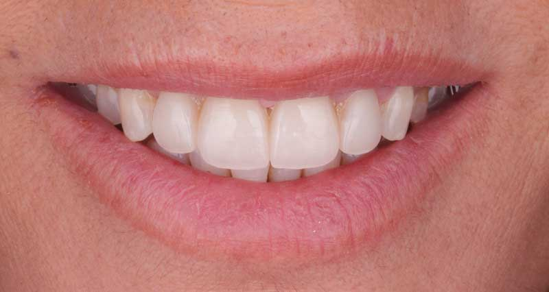Tipos de blanqueamiento dental y preguntas generales sobre el tratamiento